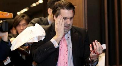 Lippert was on his way into Sejong Hall for a breakfast event when he was assaulted. | AP